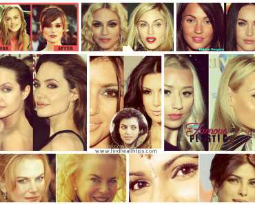 Top Celebrities who have Done Plastic Surgery