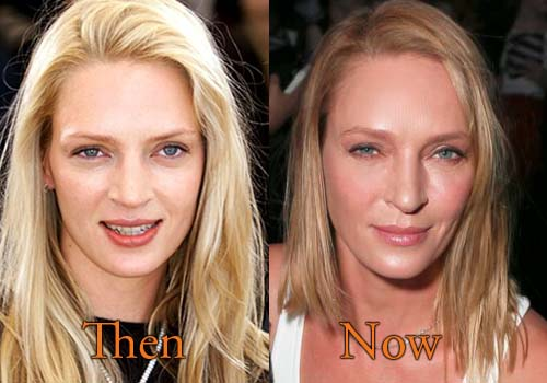 Uma Thurman before and after plastic surgery