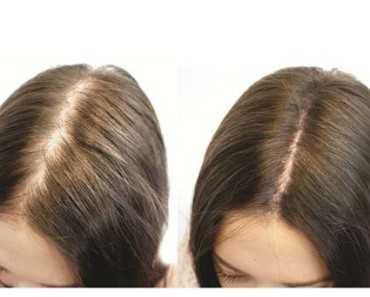 hair regrowth before and after