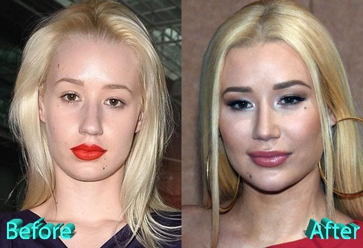 iggy azalea before and after plastic surgery