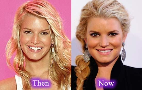 jessica simpson before and after plastic surgery