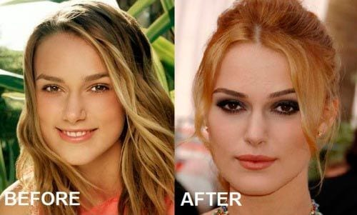 keira knightley before and after plastic surgery