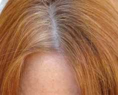 flaky scalp
