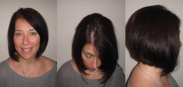 Картинки по запросу hair loss after weight loss