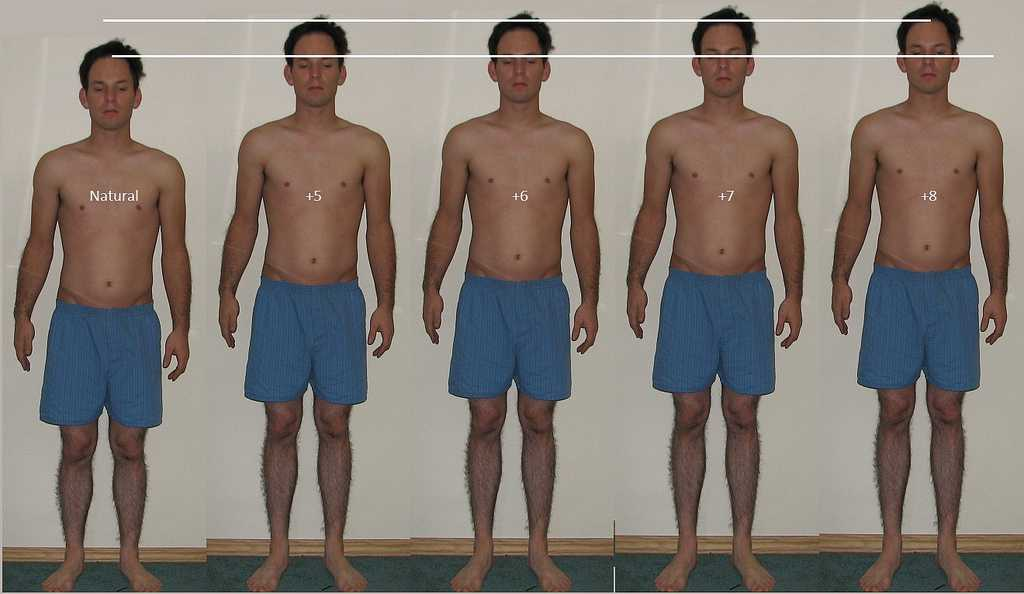 height lengthening surgery