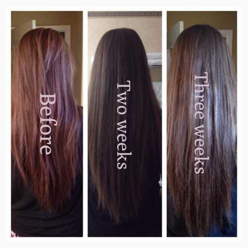 vitamin supplements for hair