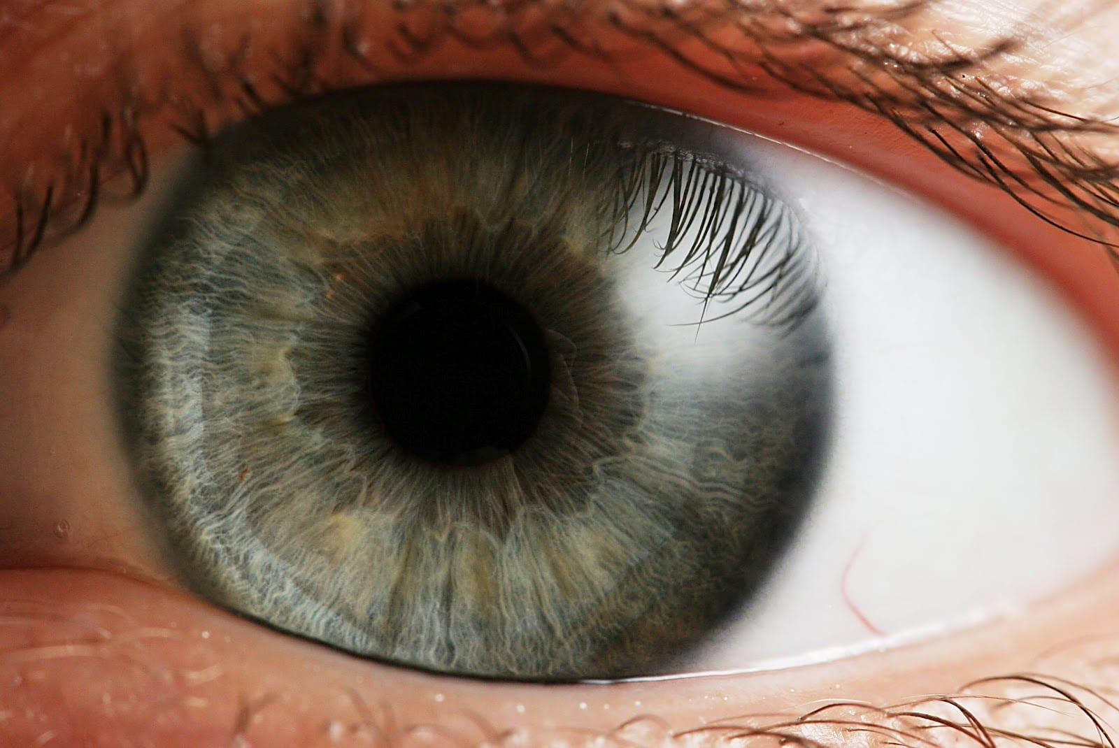 Eye Diabetes