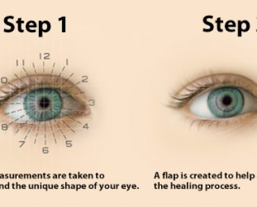 vision correction surgery