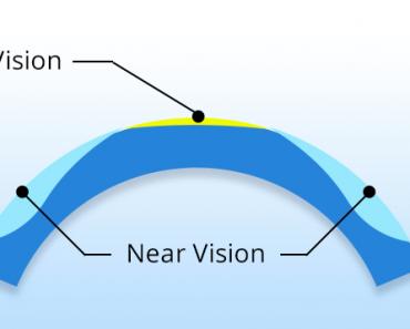 Presbyopia Eye Surgery