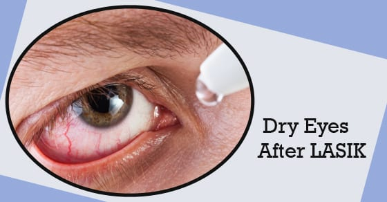 dry eyes after lasik