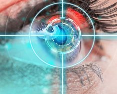 lasik eye surgeons in new york
