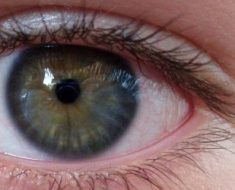 lasik eye surgery risks
