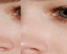 skin pore