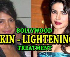 skin lightening treatment