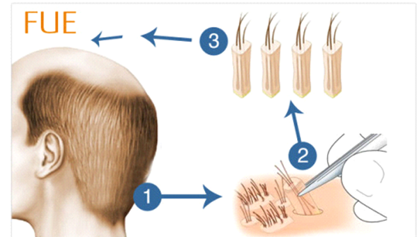 Hair Transplantation in Turkey with High Quality and Affordable Price 1