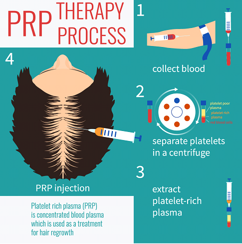 hair transplant therapy process