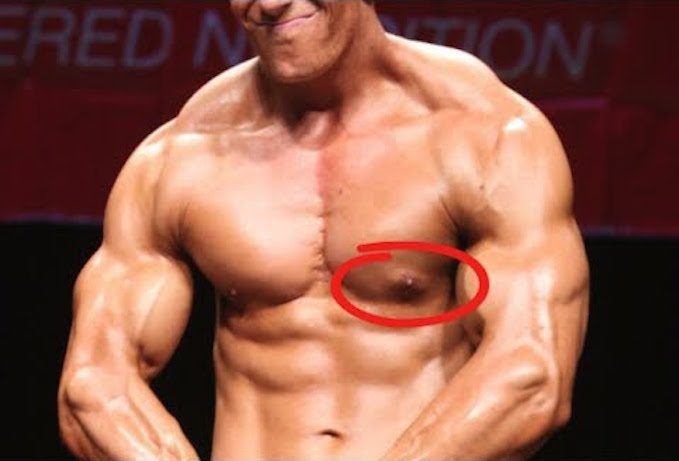 steroids effects