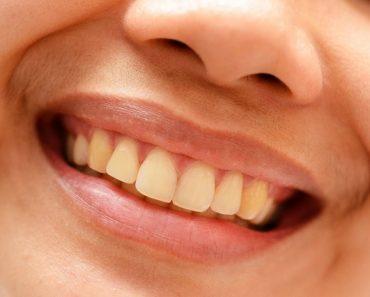 yellow teeth causes