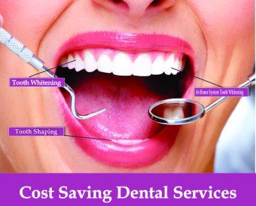 Cosmetic Dental Procedures