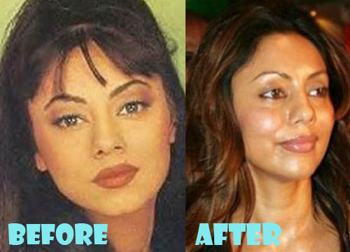 Gauri Khan Plastic Surgery
