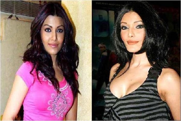 Koeina Mitra Bollywood Actress Plastic Surgery