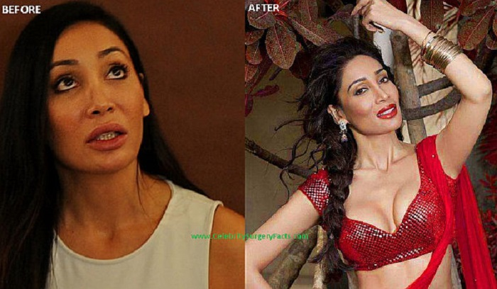 Sofia Hayat Bollywood Actress Plastic Surgery