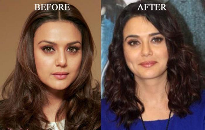 Preity Zinta Bollywood Actress Plastic Surgery