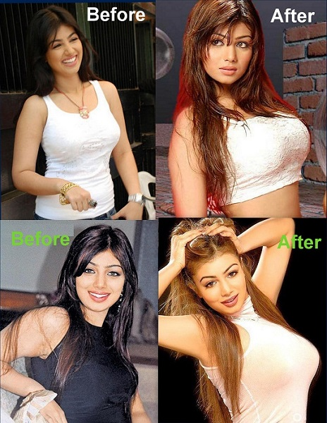 Ayesha Takia Bollywood Actress Plastic Surgery