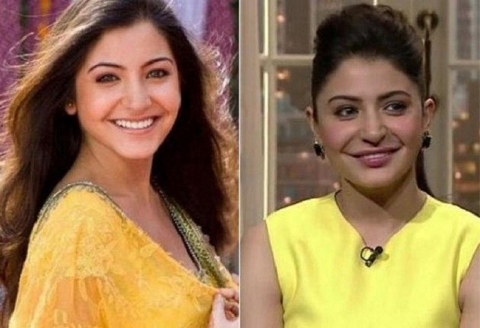 Anushka Sharma Bollywood Actress Plastic Surgery