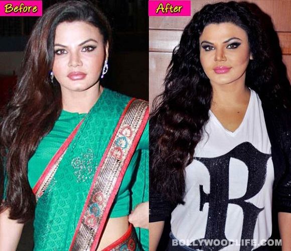 Rakhi Sawant Bollywood Actress Plastic Surgery