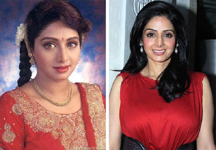Sridevi Bollywood Actress Plastic Surgery