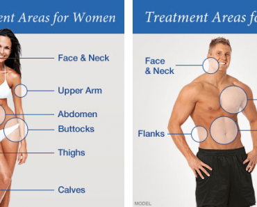 liposuction fat loss surgery
