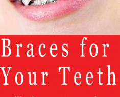 braces for your teeth