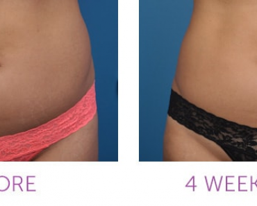 coolsculpting how it works