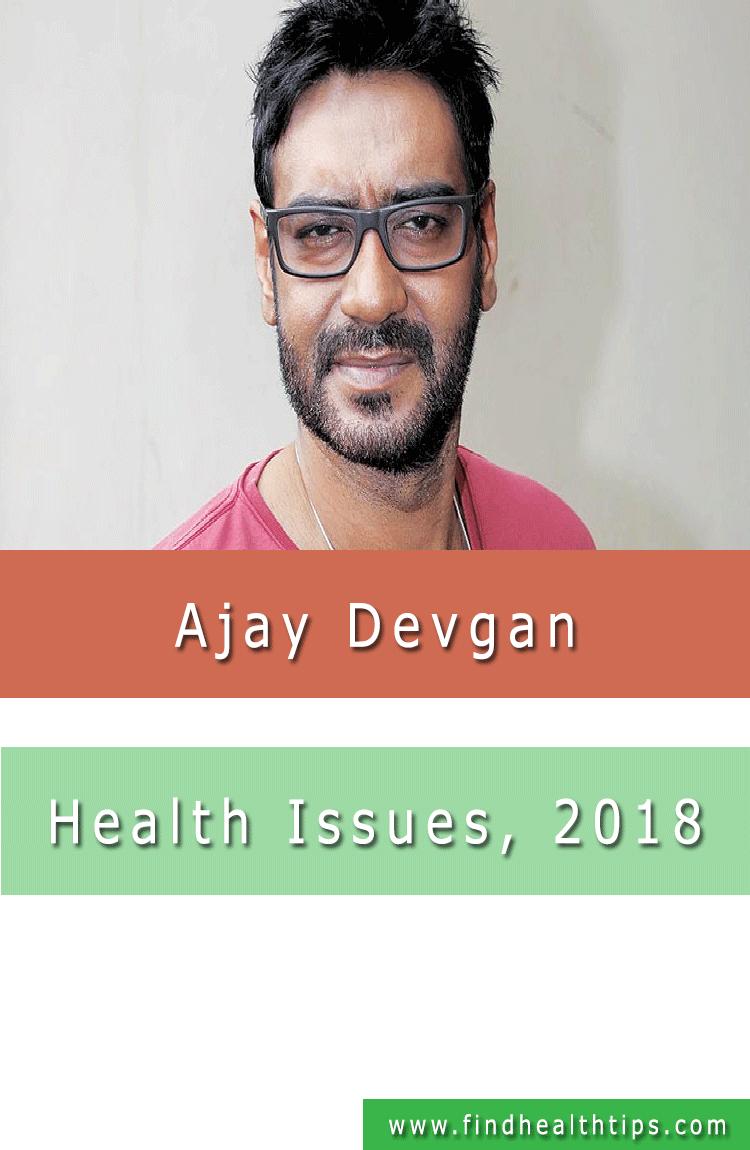 Ajay Devgn Health Issue 2018