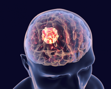 brain tumor prevention
