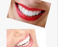 brighter smile