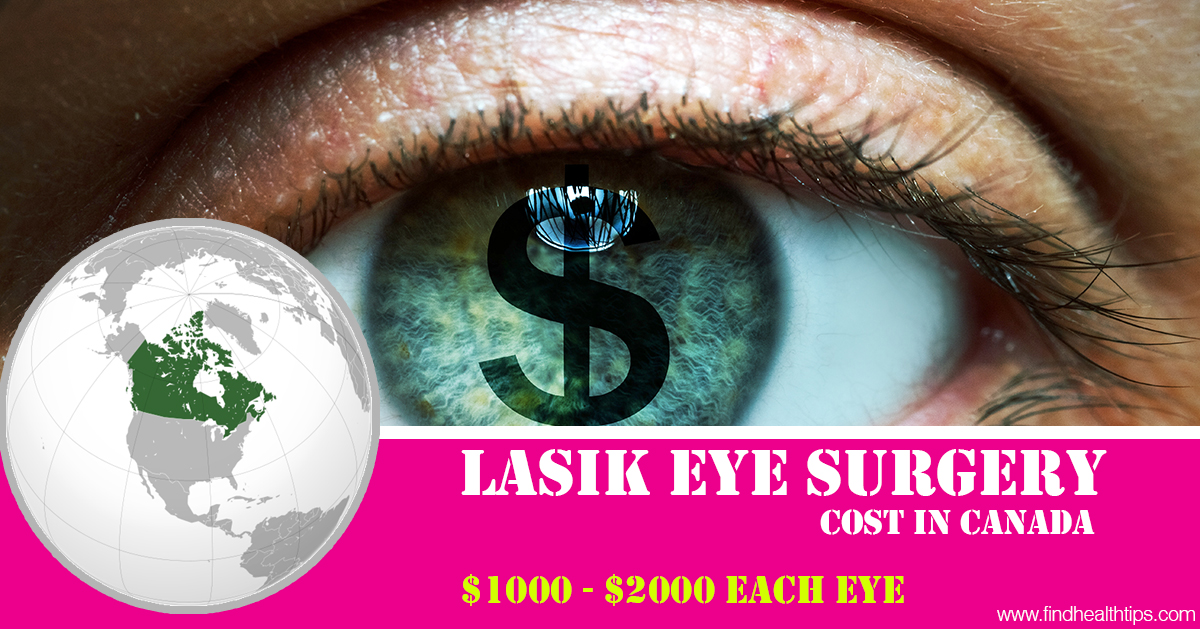 lasik eye surgery cost in Canada
