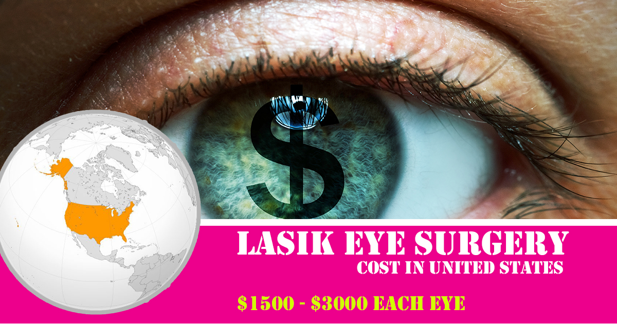 lasik eye surgery cost in united states