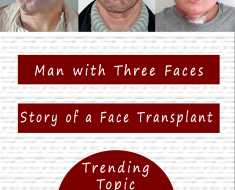 man three faces face transplant