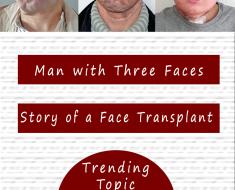 man three faces face transplant