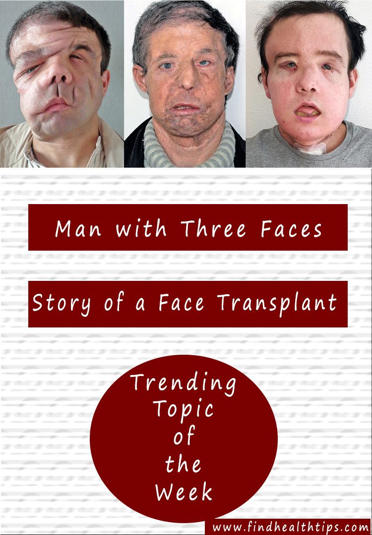 man three faces Jerome Hamon face transplant