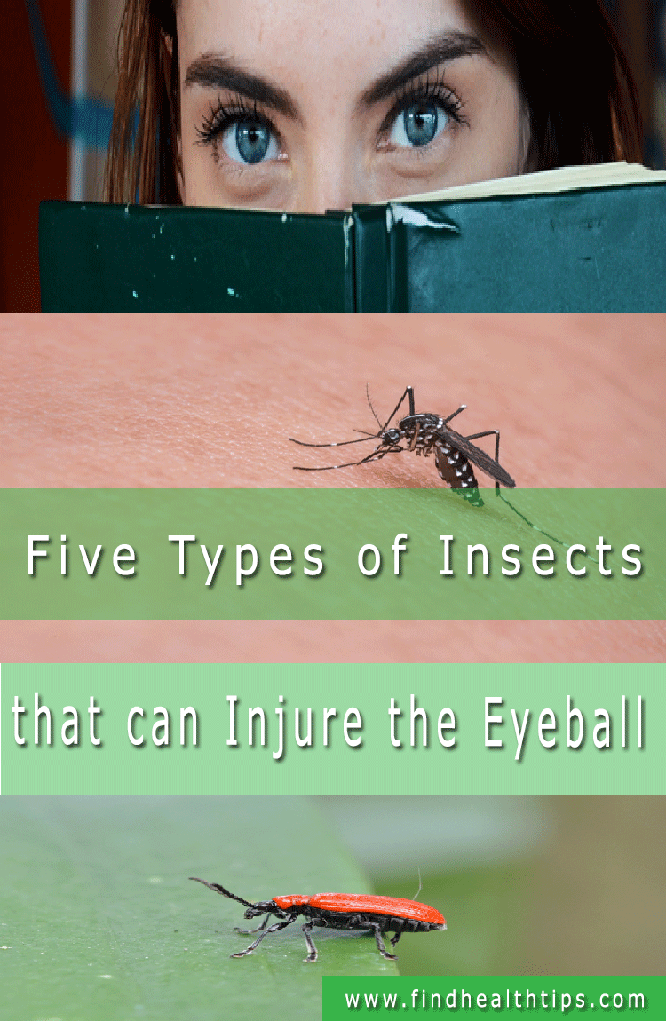 insects eyeballs