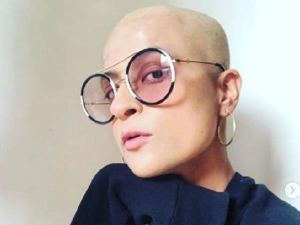 Tahira Kashayp Bald