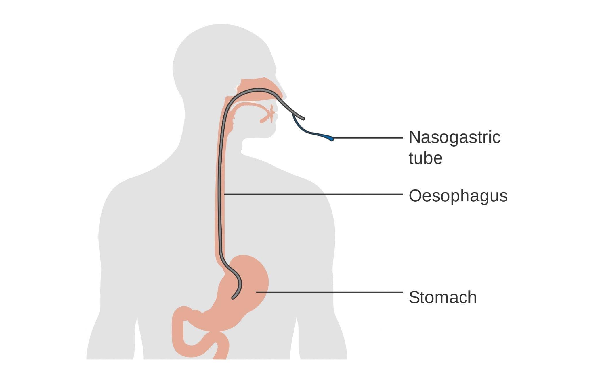 Feeding Tube Stomach