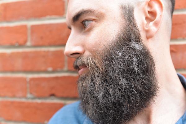 beards with dandruff