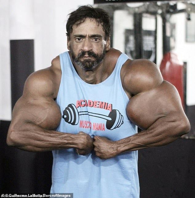 Brazilian bodybuilder synthol injection