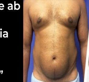 Fake Ab Surgery