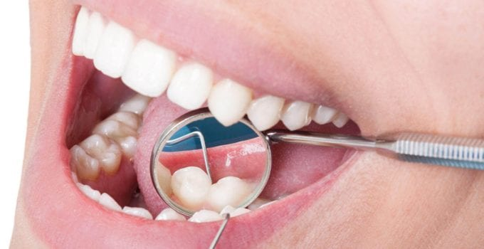 How to treat gum disease properly