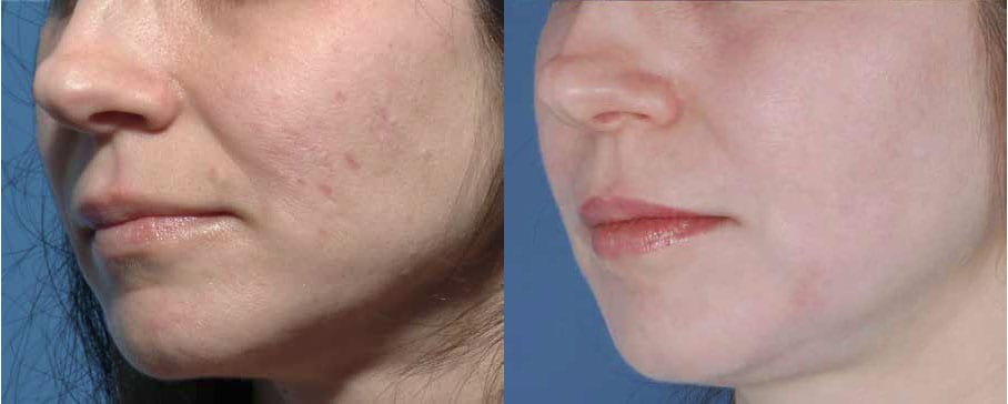 Scar Removal Pros and Cons